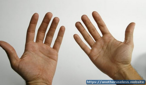 Humans are the only primates that dont have pigment in the palms of their hands